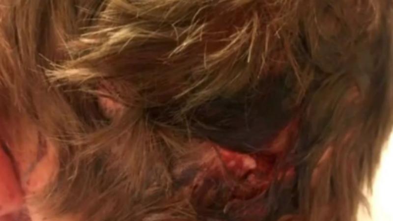 Homem acorda com a cabeça na boca de urso — EUA