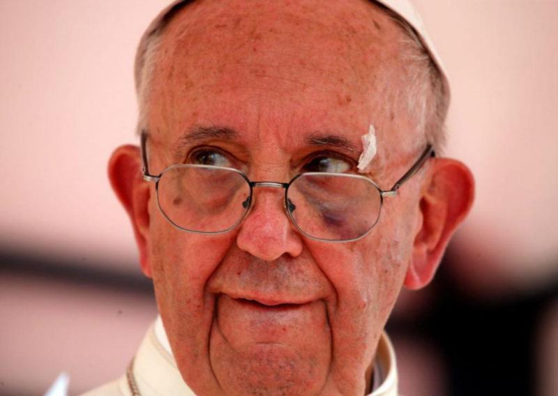 Ferimentos são visíveis no rosto de Francisco
