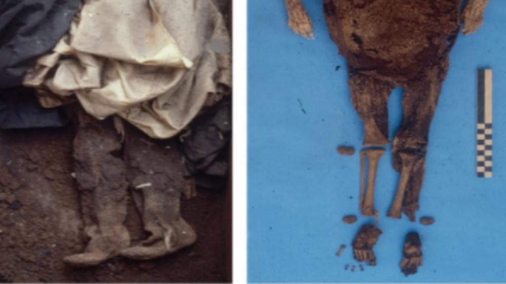 Múmia de criança do século XVI confirma Hepatite B como doença antiga