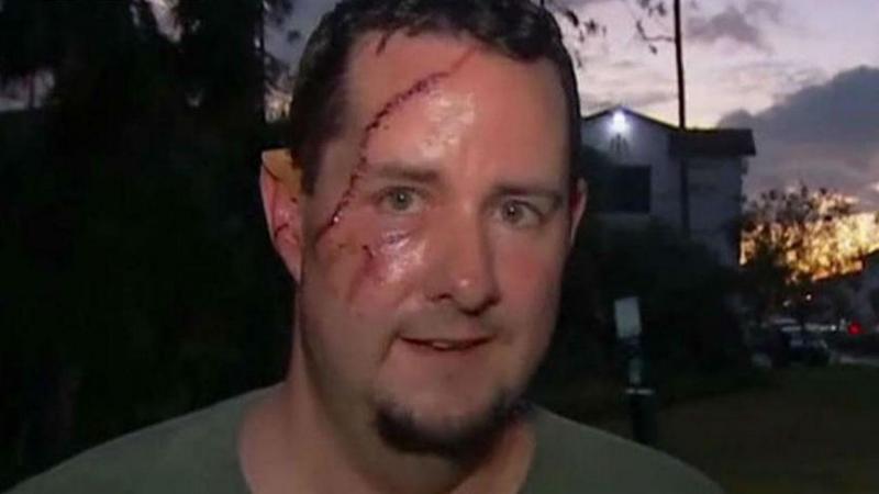 Andrew Meunier foi atacado por um urso na Florida