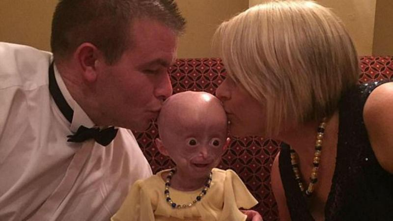 Lucy Parke sofria de progeria