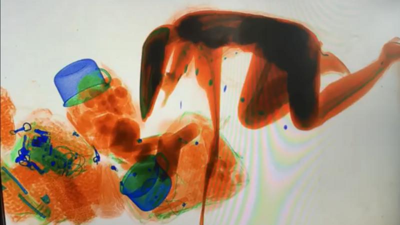 Imagens mostram mulher ajoealhada dentro da máquina de controlo de Raio-X