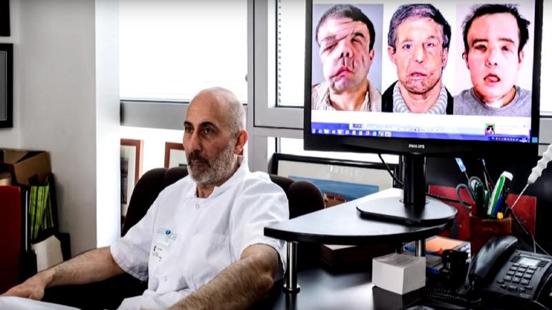 Médico Laurent Lantieri responsável pela operação a Jérôme Hamon