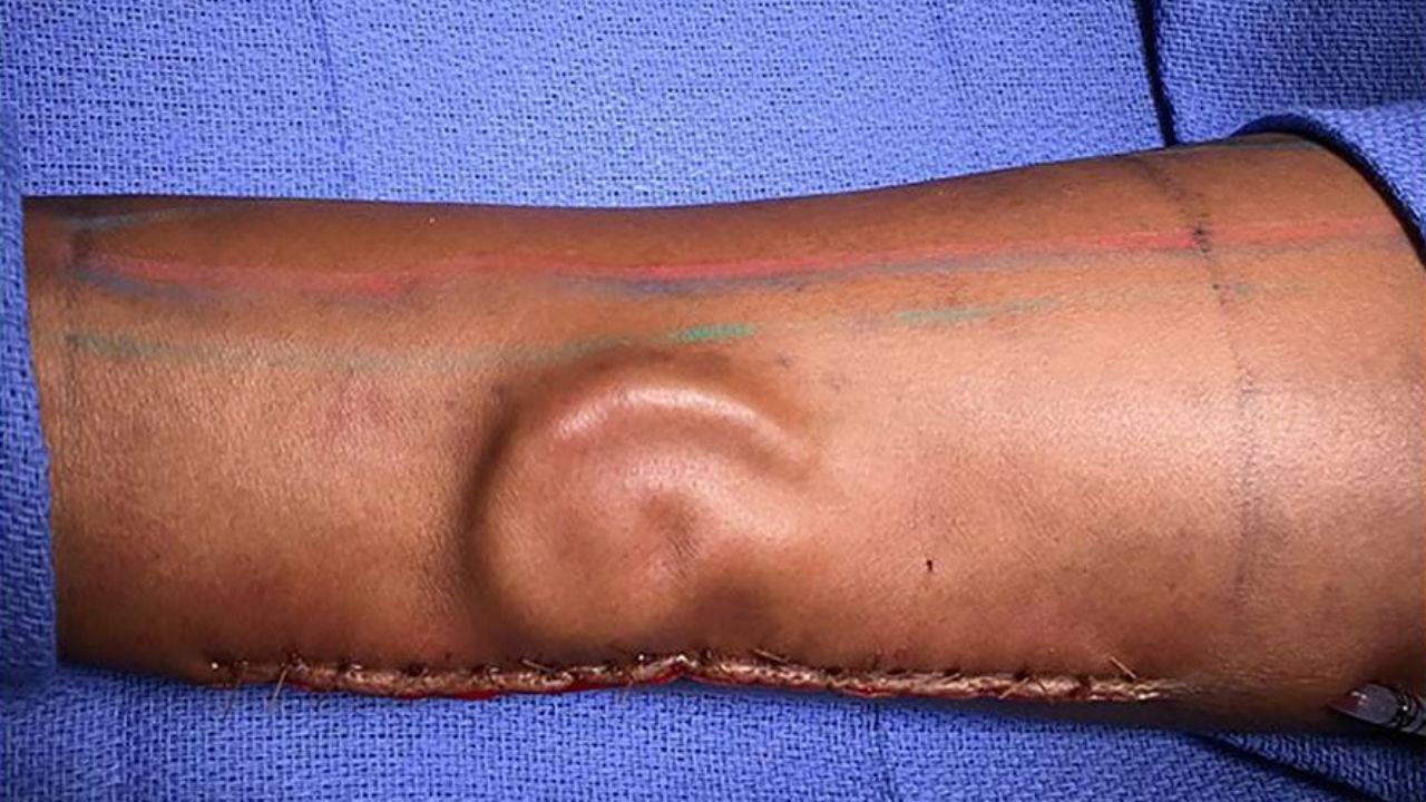 Orelha foi implantada no antebraço
