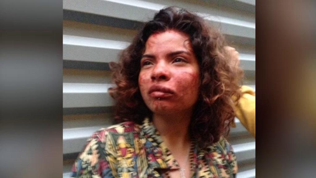 Jovem colombiana agredida por segurança no Porto