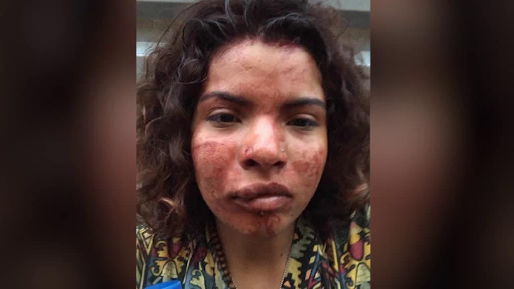 Queixa-crime contra segurança que agrediu luso-colombiana no Porto