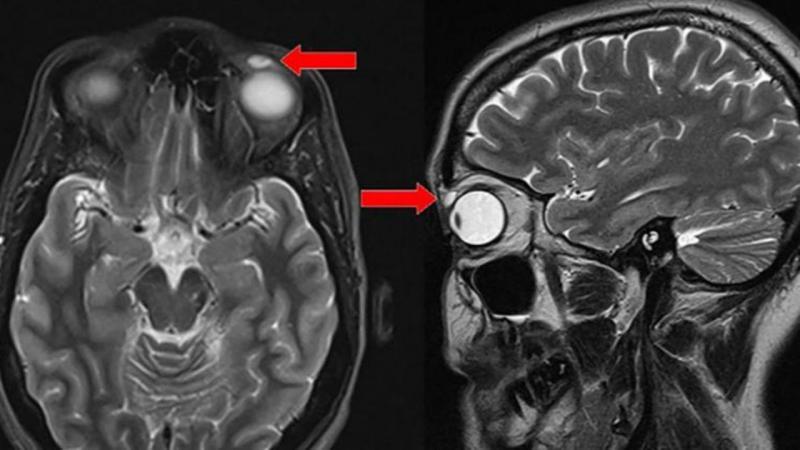 Lente de contacto alojada no olho de uma mulher há 28 anos