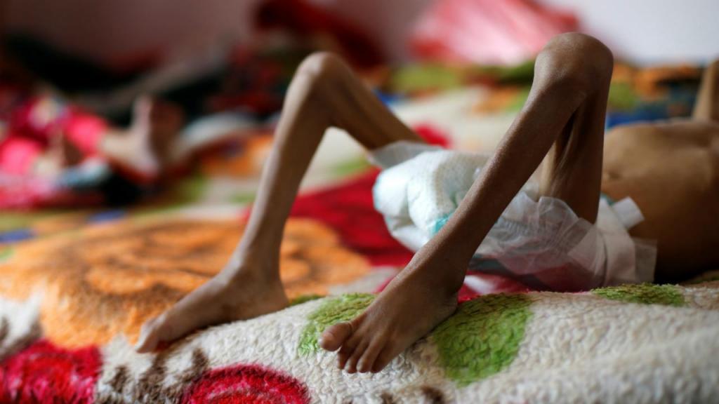 Fome no Iémen