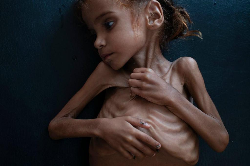 Amal Hussain - Iémen