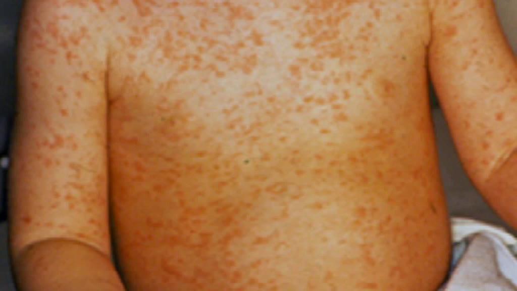 DGS confirma casos de sarampo na região de Lisboa