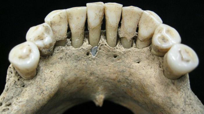 Dentição medieval