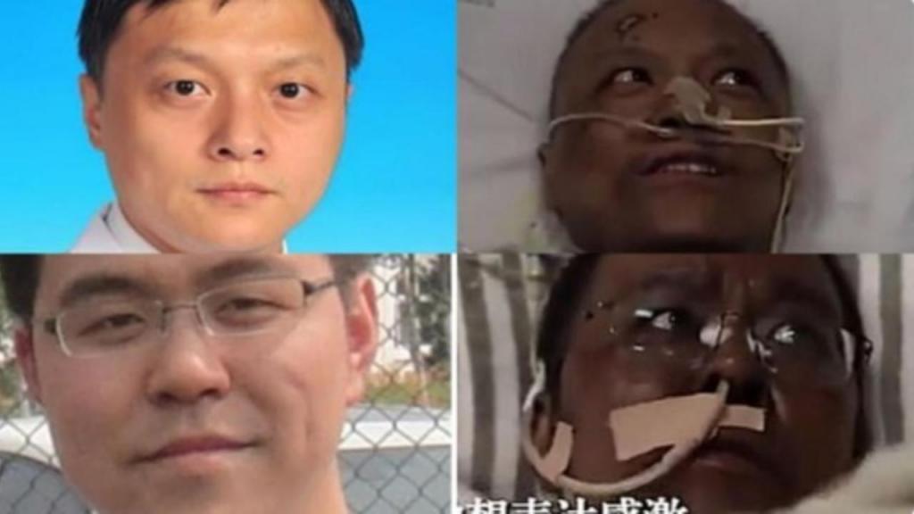 Morreu o médico chinês Hu Weifeng, que ficou com a pele negra devido ao tratamento para a Covid-19