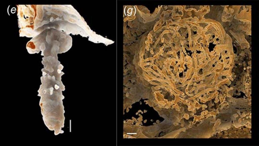 Espermatozoide dos ostracodas