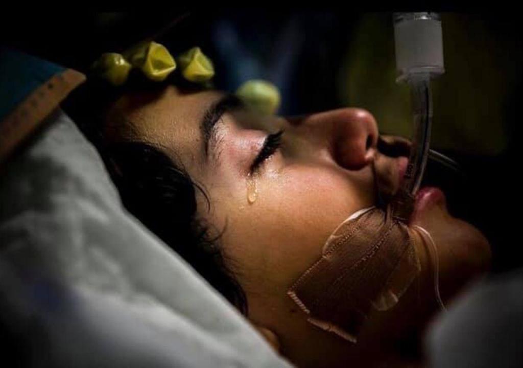 Francisco teve covid-19 e foi a primeira criança a desenvolver sintomas semelhantes à doença de Kawasaki
