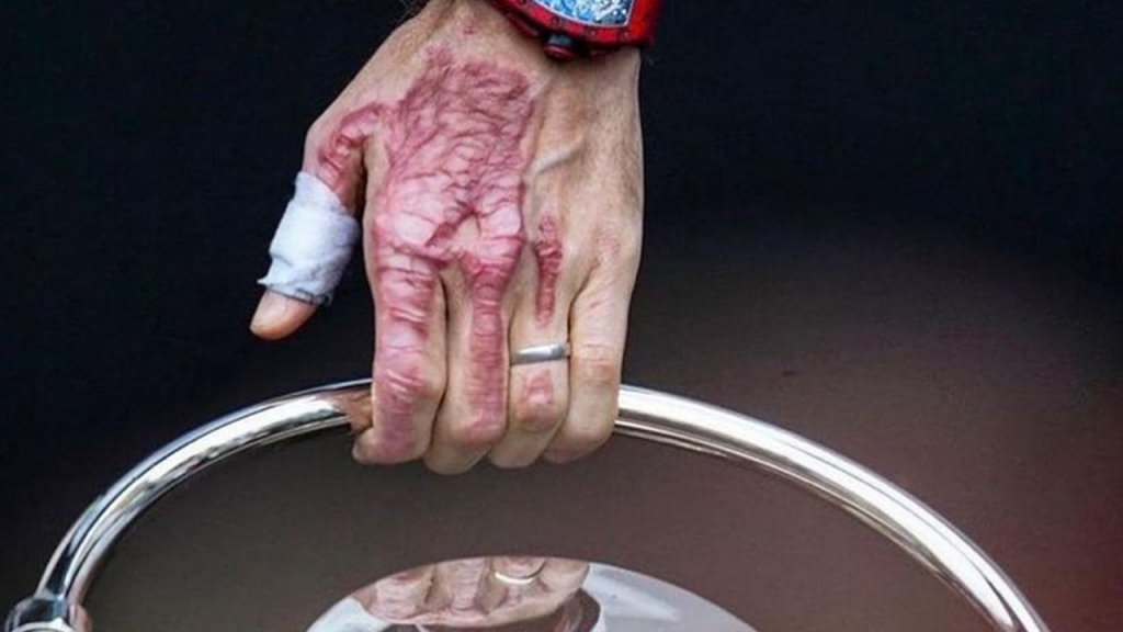 Mão de Romain Grosjean (Grace Alivia Hollars)