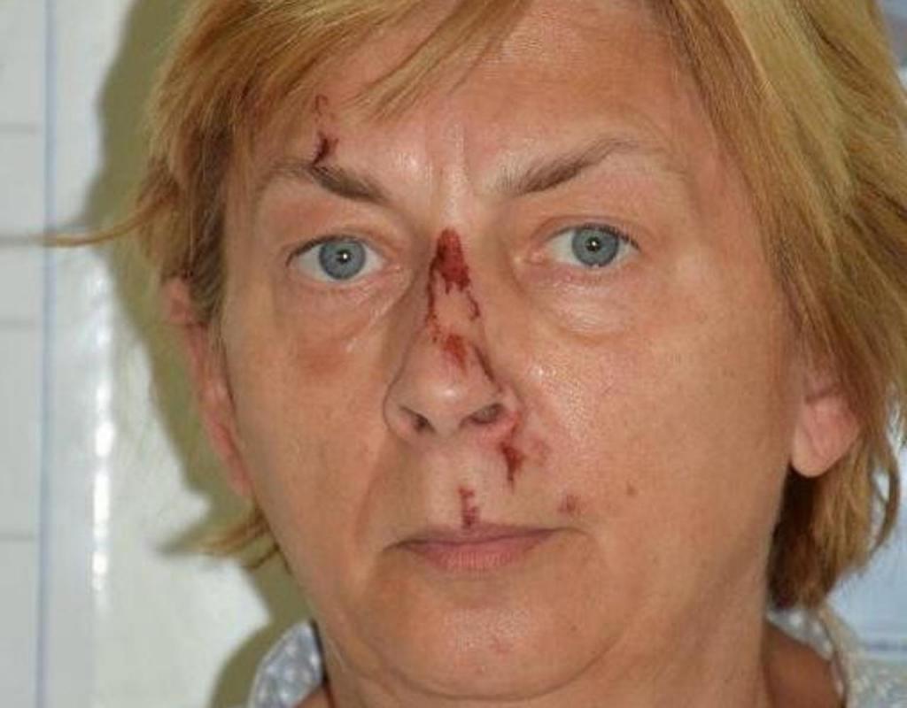 Mulher desaparecida na Croácia