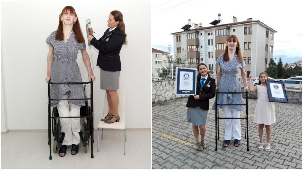 Jovem de 24 anos é a mulher mais alta do mundo com 2,15 metros
