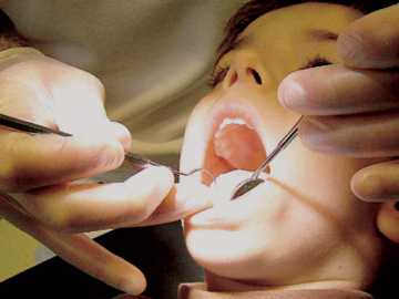 Saúde Oral: Tratamentos apenas para alguns