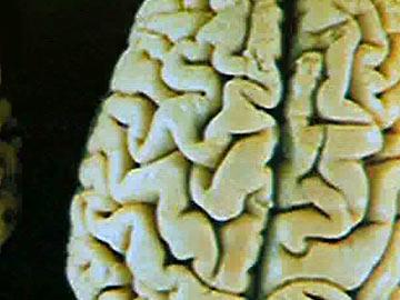 Alzheimer e Parkinson: Estudo de portugueses pode revolucionar tratamento